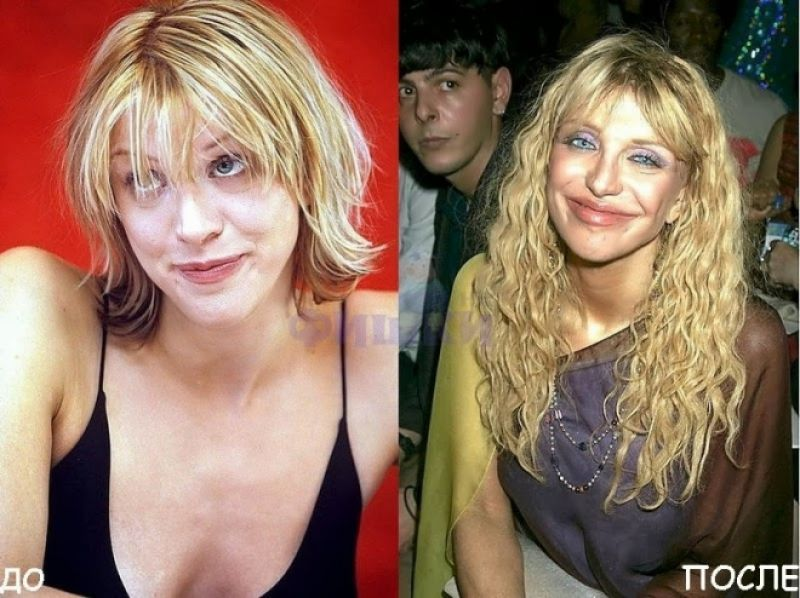 5-beauties-who-took-plastic-surgery-too-far